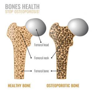 אוסטיאופרוזיס-עצם-ירך