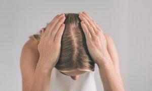 נשירת שיער מניעת התקרחות